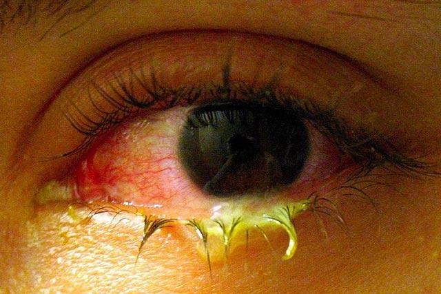 Eyelash-Eyelash Fungus