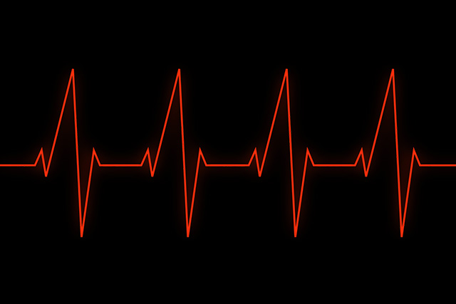 Increased and Irregular Rate of Heartbeat